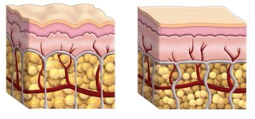 Celulitida a lymfatický systém